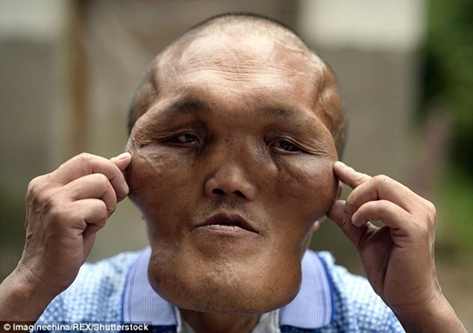 Sựphát triển bất thường này đã chèn vào răng và màng nhĩ khiến ông gần như không thể nghe thấy gì.