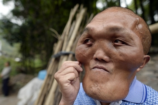 Khi đã trải qua nửa đời người, ông cũng chỉ có một ước mơ là có một khuôn mặt bình thường như bao nhiêu người khác.