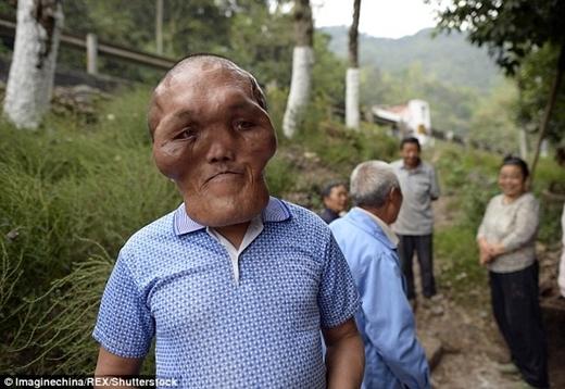Ông mắc một chứng bệnh hiếm gặpcó tênloạn sản mặt, một dạng phù gây ra dị dạng khiến gương mặt của ông ngày càng biến dạng đi.