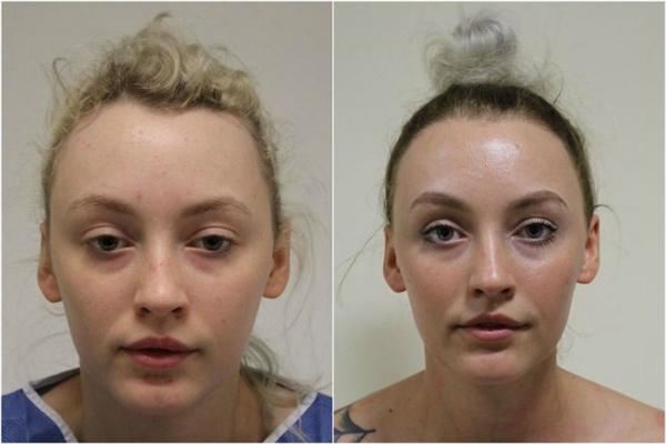 Diva phải nhờ đến phương pháp cấy tóc để chấm dứt cơn ác mộng nhiều năm của mình.