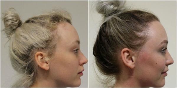 Loạtảnh so sánhDiva trước và sau khi cấy tóc