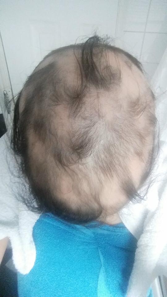 Các bác sĩ chẩn đoáncô mắc bệnh hói đầu do quácăng thẳng.Đến tháng2/2015, tóc của Ashleigh đã rụng đến 95%