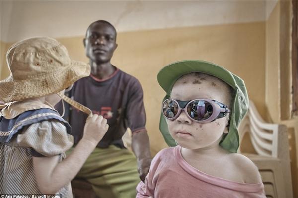 Da của người bạch tạng có rất ít hoặc không có melanin.Điều này khiếnhọ rất dễ bị tổn thương dưới ánh nắng mặt trời. Những đứatrẻ buộcphải đeo kính râm và mũ để bảo vệ mình.