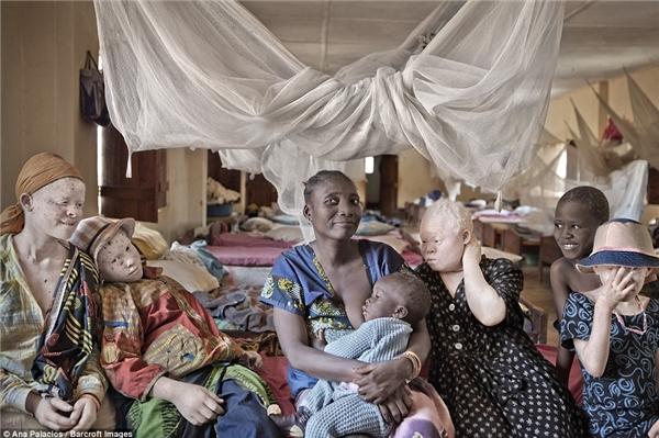 Chính phủ Tanzania thành lập cáctrung tâm cứu trợđặc biệt cho người bị bạch tạngsau khi có quá nhiều người bị bắt cóc và giết hại. Có cả những người không bị bệnh nhưng vẫn sống ở đây cùng với các thành viên bạch tạng trong gia đình.