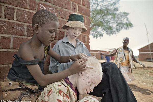Hadija đangbím tóc tóc Zawia dưới một bóngrâm, nơi Zawia khôngphải đối mặt với nhữngrủi ro của ánh nắng mặt trời.