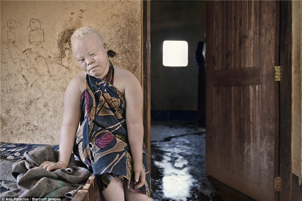 . Baswira Ntotye ngồi trong phòng của mình để tránh ánh nắng mặt trời buổi trưa.