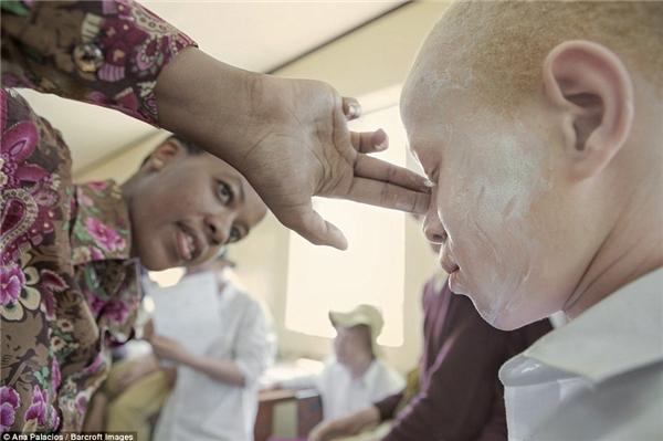 Một người phụ nữ đang giúp cậu bébôi kemKilisun, kem chống nắng dành riêngcho những người bị bạch tạng.