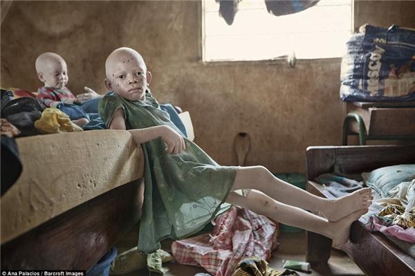Aisha Adam là một trong số ít các trẻ em đang sống tại làng bạch tạngvới gia đình gồmmẹ và ba anh em.