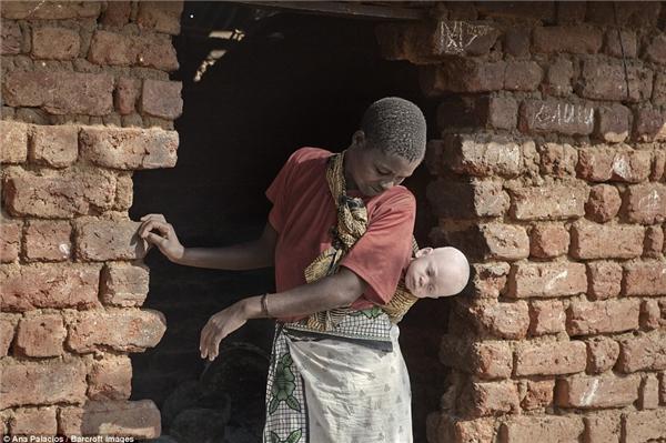 Những người phụ nữ bỏ quê hương để tìmđến trung tâm với đứacon mắc bệnhbạch tạng của họ khi bị cộng đồng kì thị, tẩy chay.