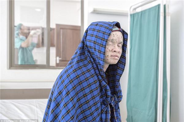 Một người phụ nữ bạch tạng trùm khăn kín đầuđể bảo vệ làn da mỏng manh trong lúcchờ đợimột bác sĩ tại Trung tâmDa liễu.