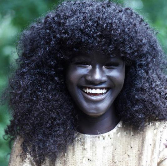 Chính vì màu da đen như than này mà Diop thường xuyên trở thành mục tiêu chọc ghẹo khi còn nhỏ.