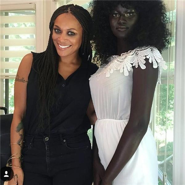 Làn da của Diop giàu melamin hơn nên màu da sậm hơn những người da đen bình thường.