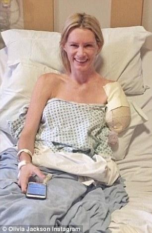 Sau khoảng thời gian dài cảm thấy khó chịu, Olivia đã quyết định đi đến bệnh viện để cưa bỏ cánh tay.
