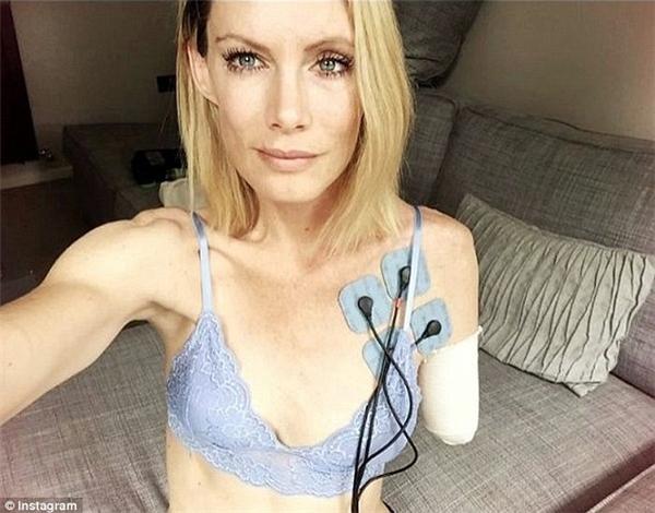 Hiện tại, Olivia đã dần quen với cuộc sống mới sau phẫu thuật nhờ sự động viên của chồng.