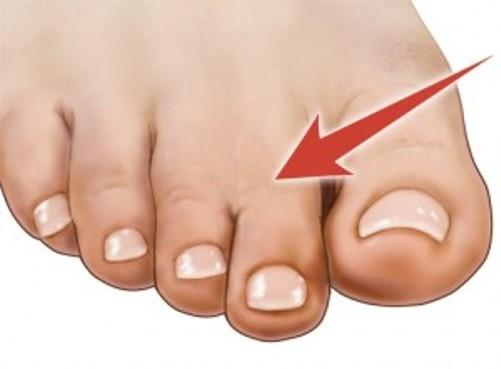 Các tình nguyện viên thường bị nhầm lẫn khi phải chỉ ra ngón nào được chạm vào, đặc biệt là ngón thứ 2.