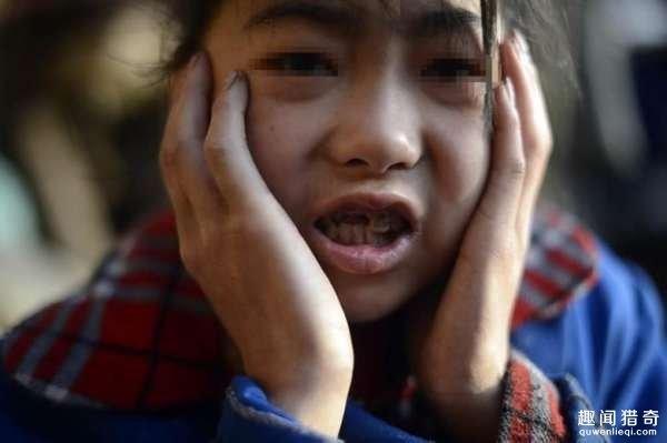 Thắt lòng với câu chuyện cô bé ăn 7kg gạo một ngày vẫn gầy như que củi