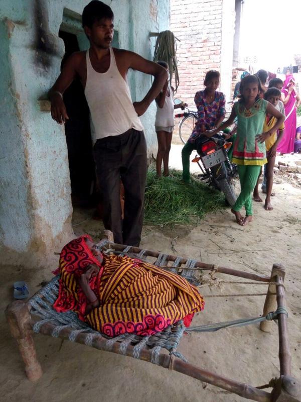 Từ một người phụ nữ cao hơn mét rưỡi, sau một thời gian, bà Shanti chỉ còn cao 60cm.