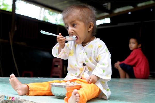 Sau vài tuần bỡ ngỡ, giờ đây, nam sinh có thể cầm muỗng tự xúc cơm trong chén.
