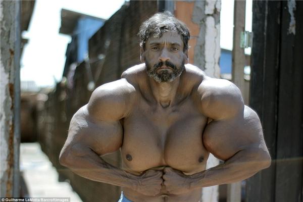 Không hài lòng với kết quả luyện tập gym, Segato được bạn mách nước và bắt đầu tiêm synthol.