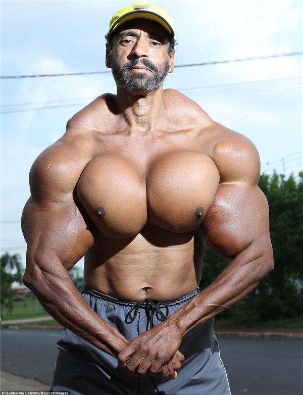 Bỏ ngoài tai lời khuyên của bác sĩ và bạn bè, Segato vẫn tiếp tục tiêm synthol vào cơ thể mình để có cơ bắp vạm vỡ hơn.