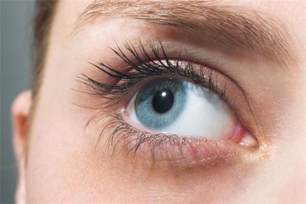 Dị ứng có thể làm mắt bạn thâm quầng. (Ảnh: Getty)