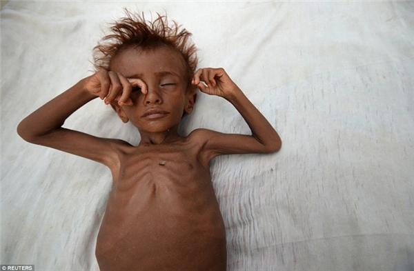 Người dân Yemen đang phải vật lộn với tình trạng thiếu đói.
