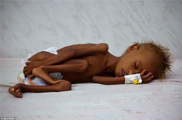 Cậu bé 6 tuổi Salem Issalà một trong số hàng trăm đứa trẻ bị suy dinh dưỡng, phải nhận sự chăm sóc đặc biệt của bệnh viện.