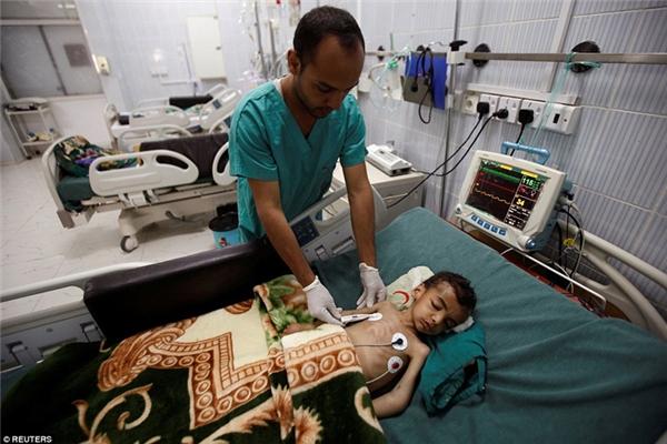 Các bệnh viện ở Yemen mỗi tháng phải tiếp nhận 120 ca suy dinh dưỡng.