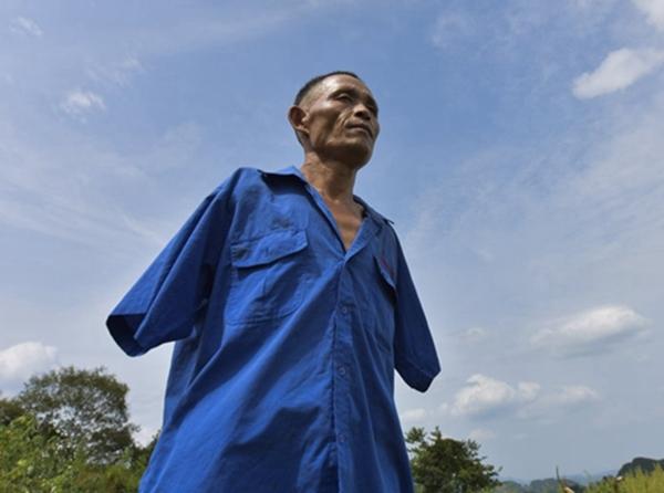 Năm 7 tuổiông Trần đã bị giật điện cao áp và phải cắt bỏ hoàn toànhai cánh tay.