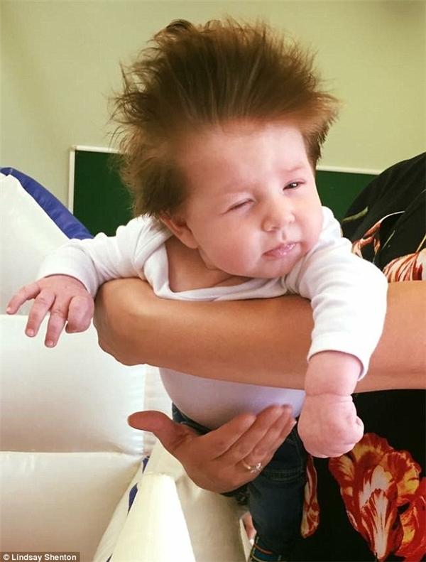 """Lindsay Shenton sau khi đăng tải tấm hình về cậu con trai yêu quý đã nói rằng: """"Stanley giờ đã được 13 tuần tuổi... và tóc của bé không hề giống như những đứa trẻ khác, nó mọc nhiều và rất nhanh, tôi thậm chí đã phải tỉa nó 2 lần rồi""""."""