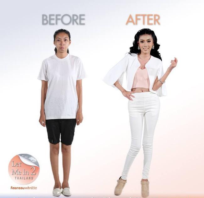 Sau 6 tháng ở Hàn Quốc để tham gia các cuộc phẫu thuật thẩm mỹ chỉnh lại cằm, hàm răng và tắm trắng, Jitraporn đã có diện mạo mới hoàn toàn khác biệt