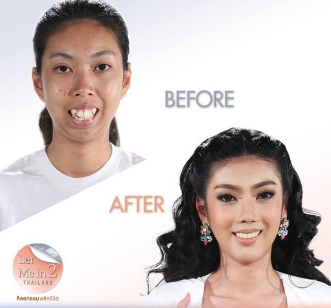 Jitraporn gần như lột xác biến thành một người khác với khuôn mặt tươi tắn, nụ cười đẹp và làn da sáng hơn.