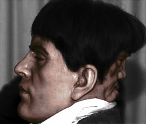 Sự tồn tại của gương mặt thứ hai gây nên sự đau khổ và bất tiện cho Mordake