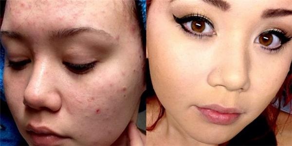 Những gương mặt đầy tàn nhang hay mụn nhọt sẽ trở nên láng mịn dưới bàn tay của các chuyên gia trang điểm.