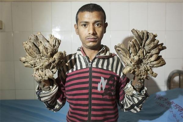 Abul Bajandarđược chẩn đoán là mắc hội chứng người cây khi 10 tuổi.
