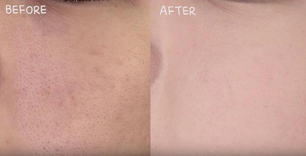 Trước và sau khi thực hiện liệu trình cấy phấn.(Ảnh: Internet)