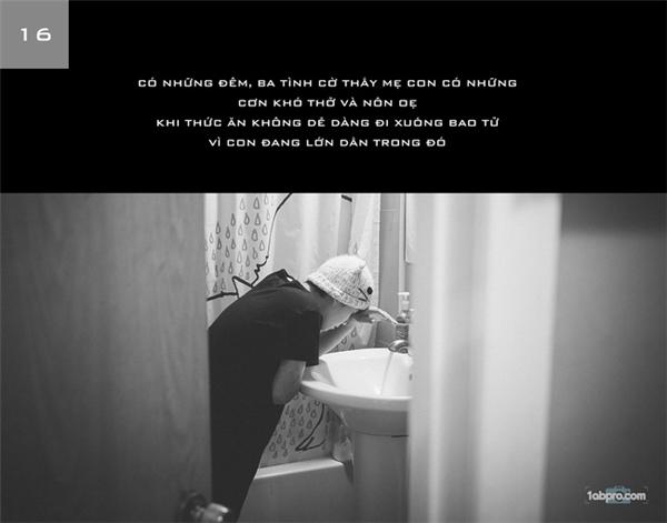 Người chồngtrẻ ngày đêm ở bên chăm sóc quan sát sức khoẻ của vợ mình, khiến những ai chứng kiến cũng đều phải rơi nước mắt vì cảm động.