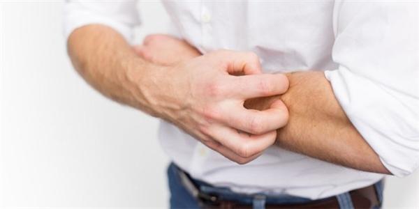 Khi da bị tổn thương rất dễ bị tụ cầu xâm nhập và phát triển thành ổ abces. (Ảnh: Internet)