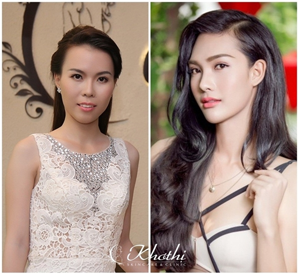 Chân dung Quán quân mùa 1 (Ngọc Anh) và mùa 2 (Minh Tiến) của chương trình Perfect Beauty sau khi thực hiện phẫu thuật thẩm mỹ toàn diện.