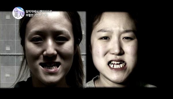 Gương mặt khá thô trước khi phẫu thuật thẩm mĩ.