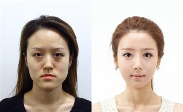Gương mặt trước và sau khi phẫu thuật thẩm mĩ.