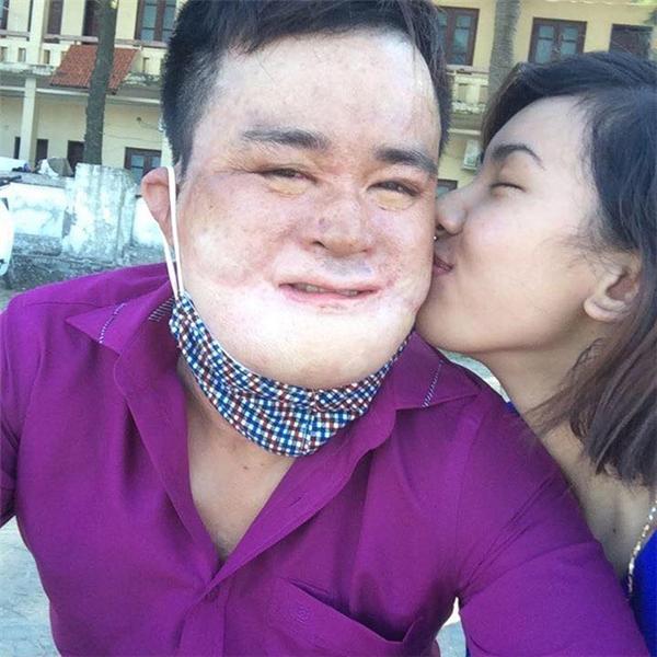Vụ cháy nổ bình gas tại Hà Nội đã khiến anh bị bỏng nặng toàn thân và khuôn mặt biến dạng gần như hoàn toàn.