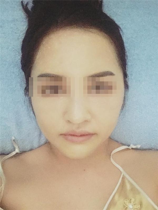 Hiện tại, những chỗ phẫu thuật của V. đang bình phục từng ngày và cô nàng đều chia sẻ những hình ảnh mới nhất của mình lên mạng xã hội.