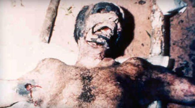 Xác chết kì lạ và kinh khủng được tìm thấy tại Brazil năm 1994.(Ảnh: Internet)