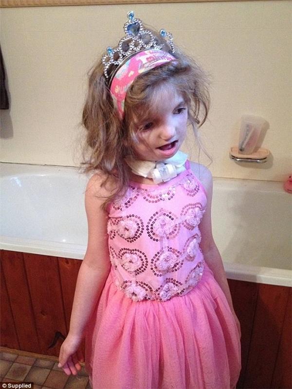 Ngay từ khi mới sinh ra cô bé Natty Tregoningđã cógương mặt biến dạng trầm trọng do mắc phảihội chứng hiếm gặp Treacher Collins.