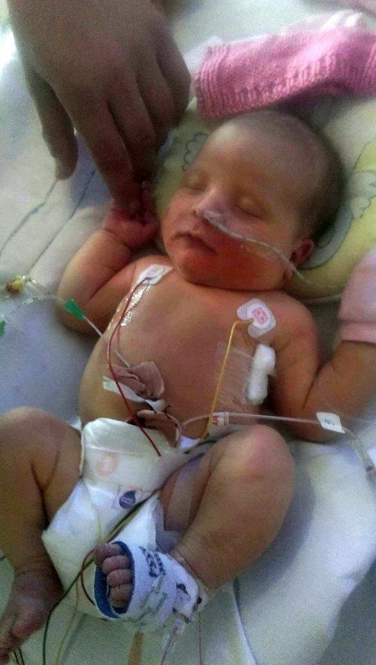 Lúc Frankie Morrisonmới chào đời, cơ thể em chỉ có35ml máu, tức tương đương với 2 muỗng xúp.