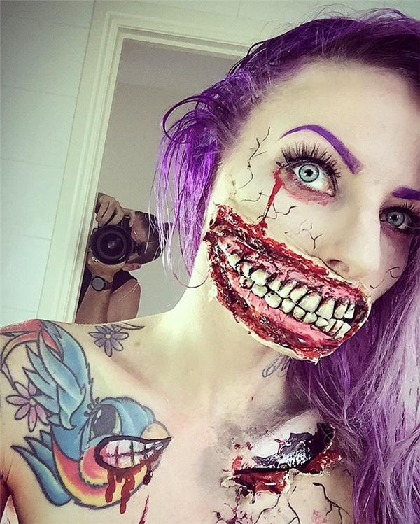 Hàm răng kinh dị này đãchiếm mất1/2diện tích khuôn mặt.