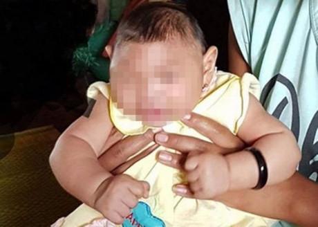 Em bé bị dị tật bẩm sinh tại Đăk Lăk