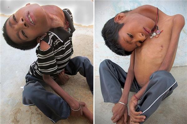 Chiếc cổ kì lạ của cậu béMahendra Ahirwar.(Ảnh:Internet)