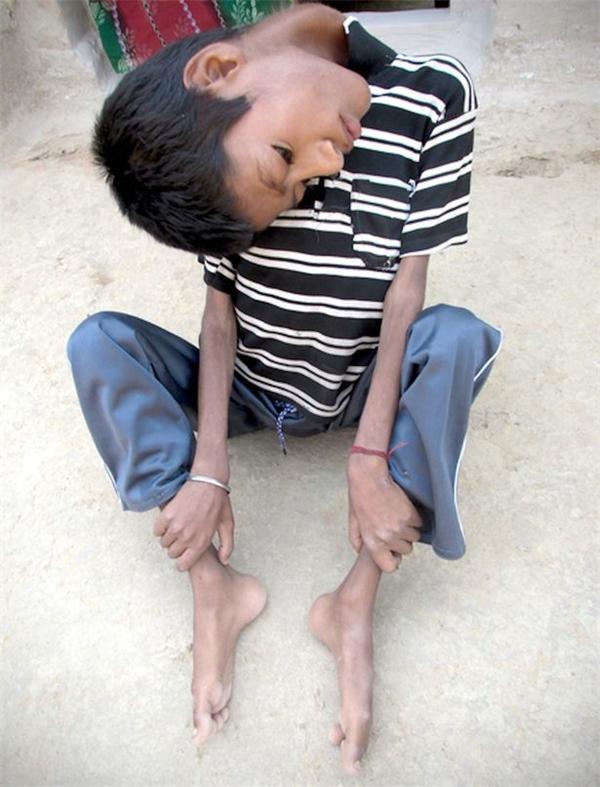 Chiếc cổ cản trở mọi hoạt động thường nhật của Mahendra.(Ảnh:Internet)
